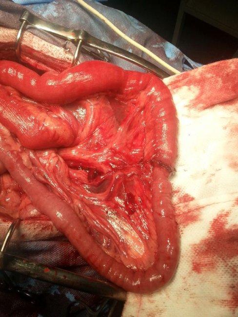 sutura (sešití) zdravých částí střev k sobě